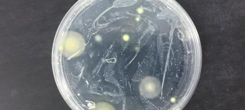 Fungal cultures from sea turtle nest sites grow happily on a Petri dish in lab